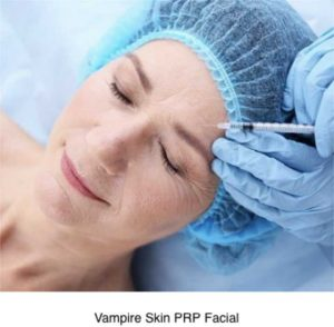 10-Reasons-for-PRP-Treatment