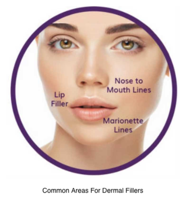 Can-Dermal-Fillers-Make-My-Wrinkles-Disappear-2