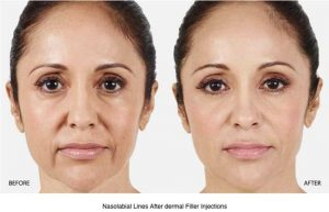 Can-Dermal-Fillers-Make-My-Wrinkles-Disappear