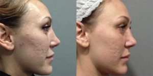 The-Benefits-of-a-Vampire-Facelift